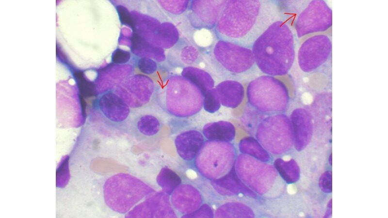 Researchers discover mechanism to overcome drug-resistance in leukemia